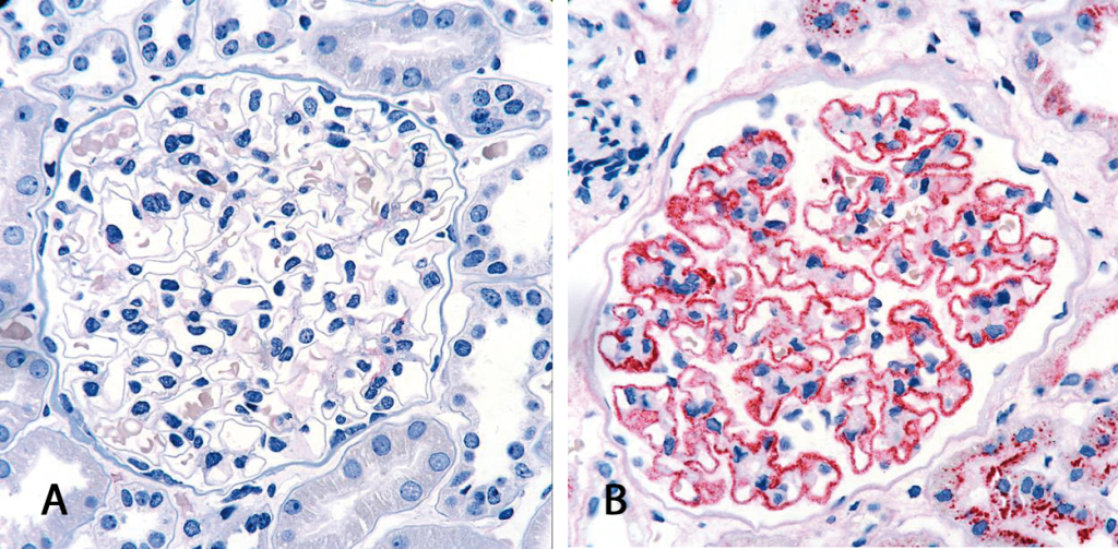 Histological examination of renal tissue section originationg from (A) healthy donor and (B) MN patient. In MN, immune complex deposits can be detected along the glomerulus basement membrane by immunohistochemical antibodystaining (red).