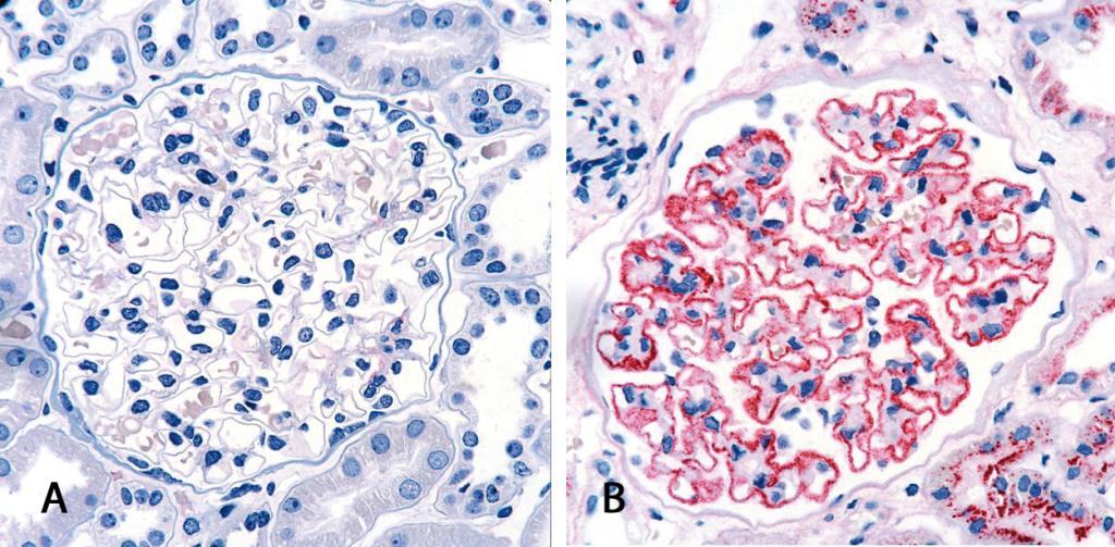 Histologische Untersuchung einer renalen Gewebeprobe (A) einer gesunden Person und (B) eines MN Patienten. Bei der MN lagern sich Immunkomplexe entlang der glomulären Basalmembran ab, die über eine Antikörperfärbung nachgewiesen werden können (rot).