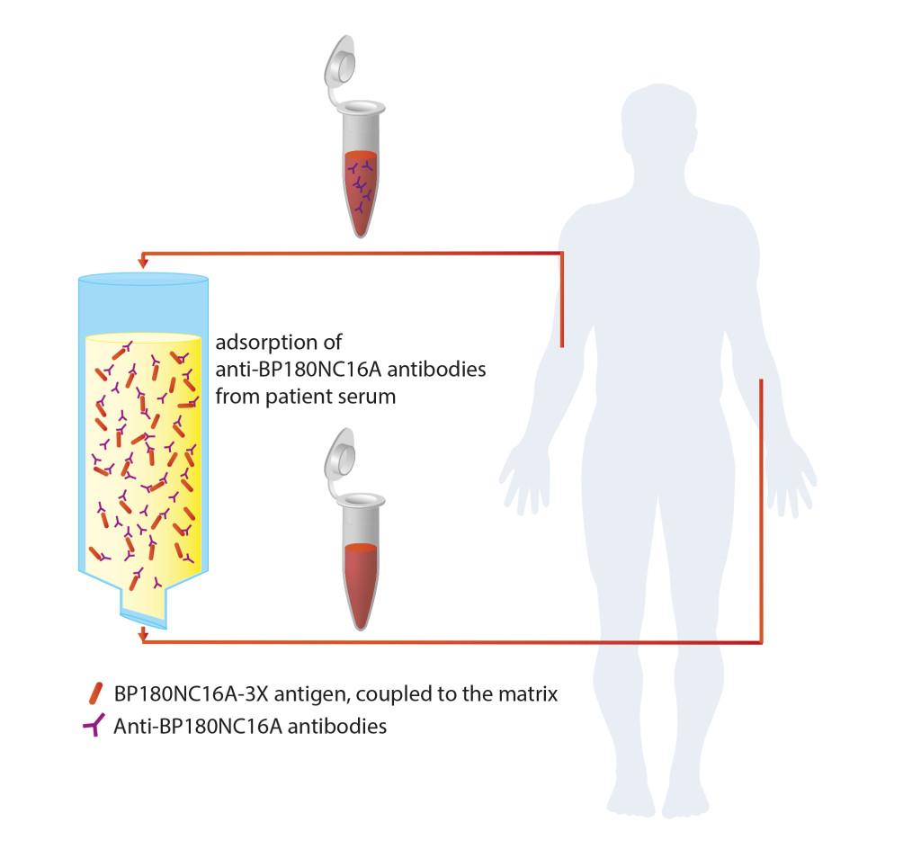 Immunadsorption_02_UK